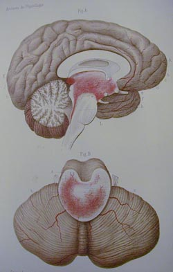 Drawing of hemorrhagic brainstem damage (from Gayet 1875)